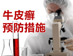 怎么预防牛皮癣?.jpg
